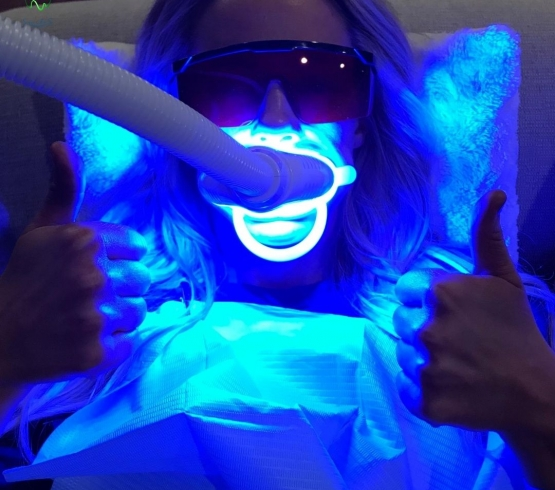 What is Laser Teeth Whitening? | Professional Teeth Whitening