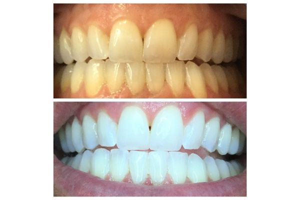 Boise Teeth Whitening Clients Before And After Images