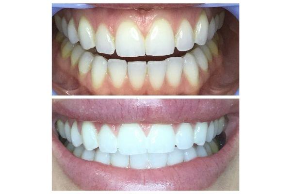 best-teeth-whitening-meridian769BEF04-E8DC-4B99-AEB3-6DE2EC30F97D.jpg