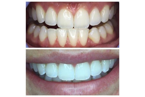 idaho-smiles6B6E5B81-F503-29A0-F4A9-0146FD9C02AD.jpg