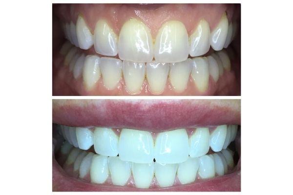 laser-teeth-whitening-boise167D9185-C5D6-556D-73BD-2D84DA8B0C34.jpg