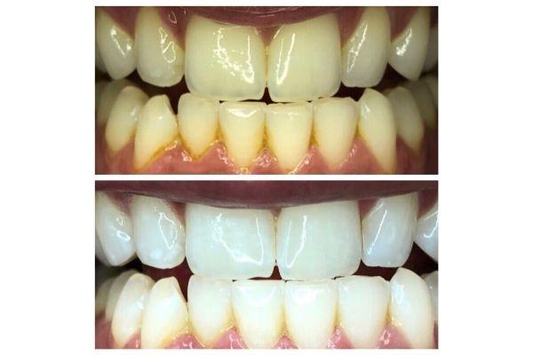 laser-teeth-whitening-eagle31C4AF91-F61B-50FD-8A48-B78FC626441A.jpg