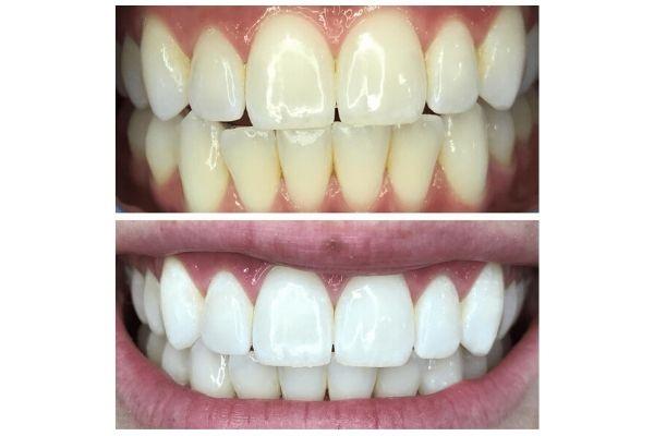 laser-teeth-whitening-meridian5DADCBC7-39CB-DA56-8CEF-C3690A2B2CFB.jpg