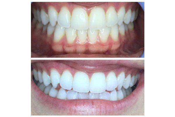 meridian-teeth-whitening3126FCE6-C328-05CF-C9C2-B6A81535128C.jpg