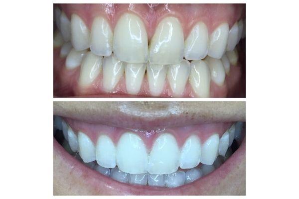 organic-teeth-whitening-boise90BFF73E-B472-CAF8-4AFD-AEB4159BD313.jpg