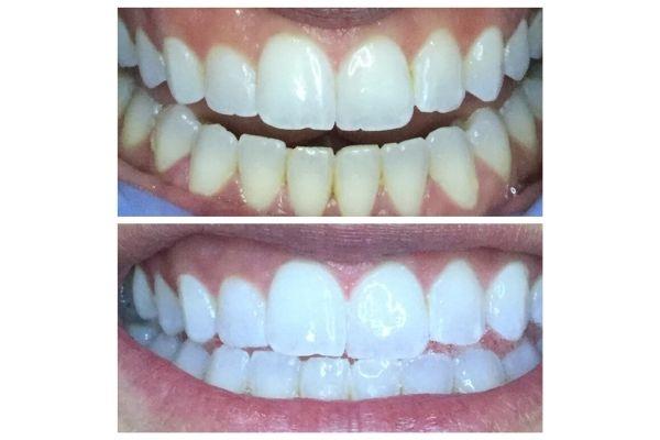 organic-teeth-whitening-garden-cityFF8686D0-2E87-D703-C850-703CA118168B.jpg