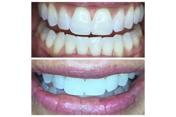organic-teeth-whitening-meridian7213FEBB-7AF0-5BE3-235B-2572D7BE2D5F.jpg