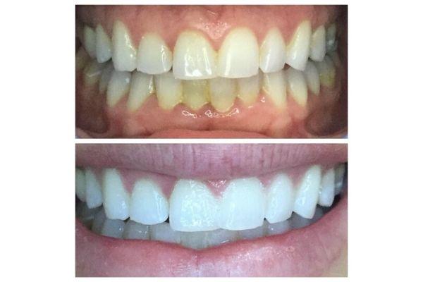teeth-whitening-boise-id661FA2F9-D31C-DD4E-4F1F-1F55C65C8197.jpg