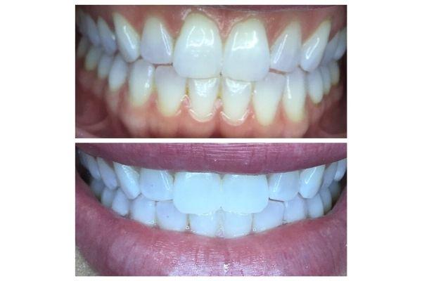 teeth-whitening-boise-idahoF4B286C7-F829-68F5-F5AA-5F02FE372FD3.jpg