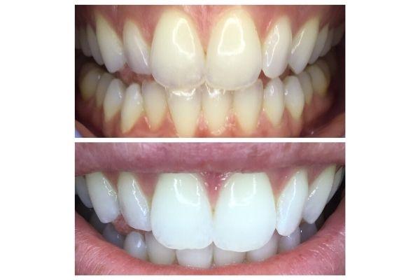 teeth-whitening-boise07CA1DD5-9425-F112-5758-172103D9FDC0.jpg