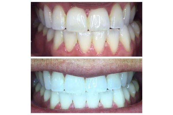 teeth-whitening-garden-city-idFB04786C-D7B8-E8B5-431D-AF46E4CBD38C.jpg