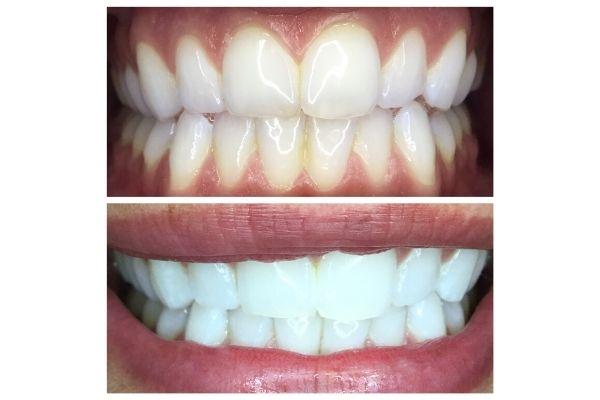 teeth-whitening-meridian-id076F25C0-0E2A-992B-7BF1-C30E88693DC8.jpg