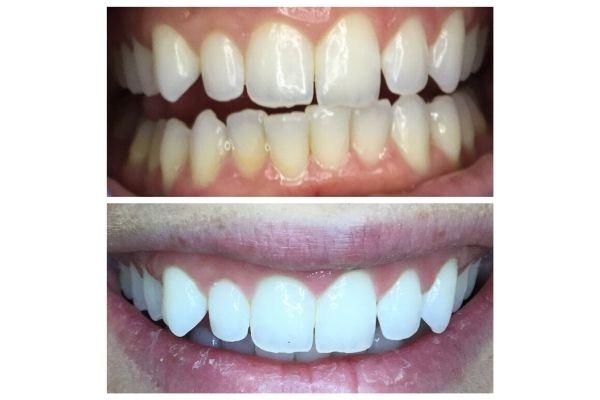 teeth-whitening-meridian5C0FA9F0-E85C-D2B3-8E59-0916038C8737.jpg