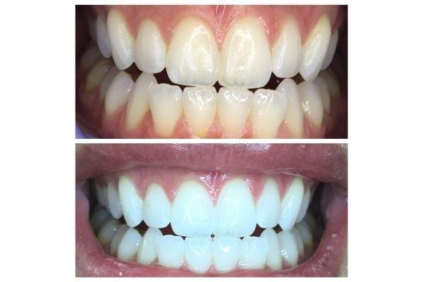 teeth-whitening022F87EF-8FA9-4AF7-376B-8977BC6D47FD.jpg