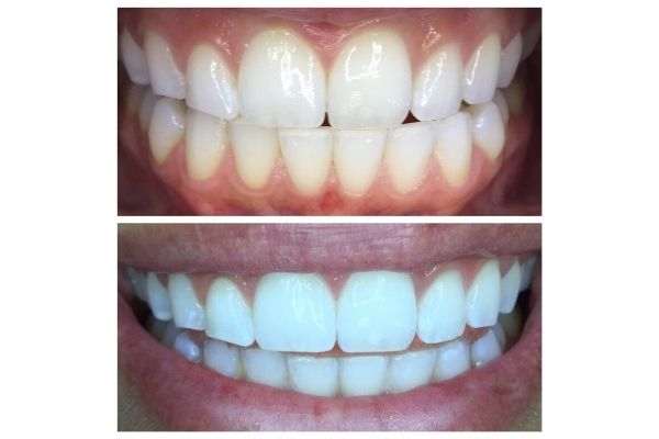 tooth-whitening3AFDDCC0-2CED-F991-8BF7-37F02637A34F.jpg